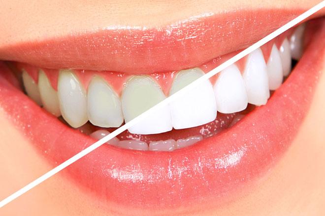 Sapphire-Teeth-Whitening