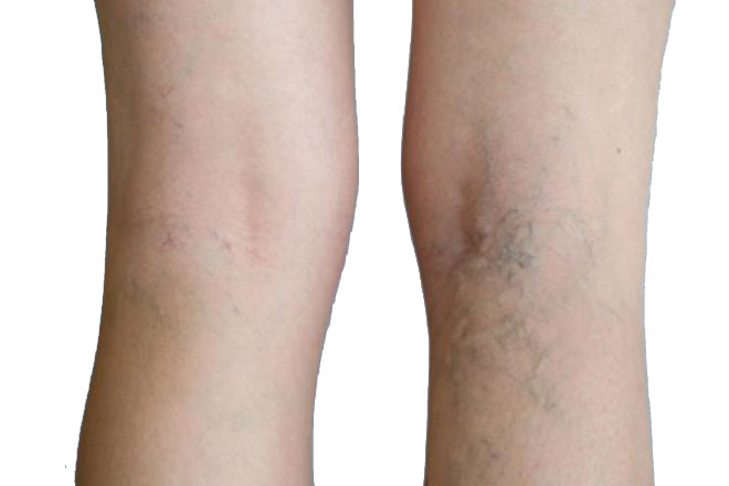 Treatment-for-Varicose-Vein