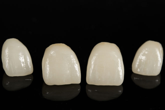 Porcelain-Dental-Crown
