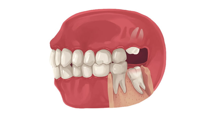 wisdom teeth removal recovery timeline