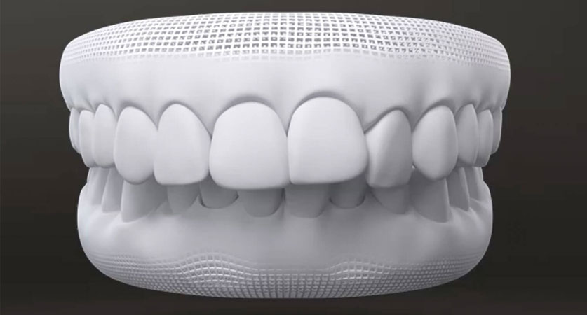 can braces fix an overbite