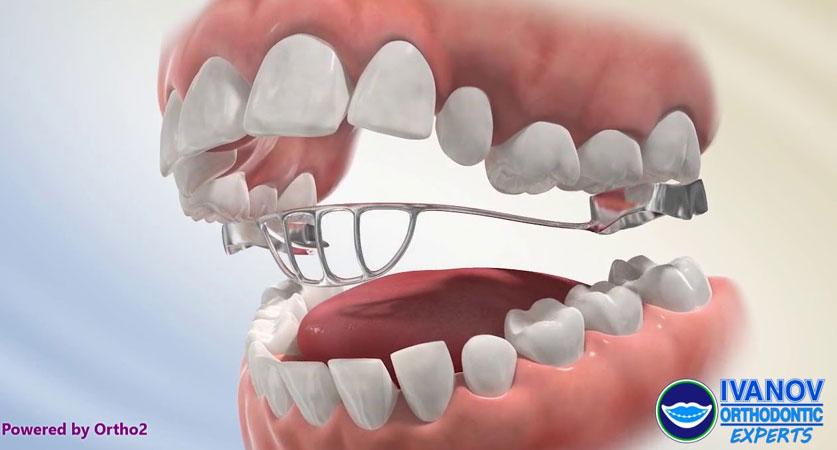 tongue crib orthodontics